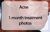 acne treatment - before and after photos